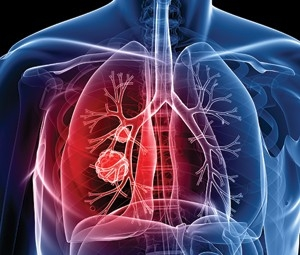Lung cancer, lung cancer screenings, harrison medical group, harrison ny doctors, health care